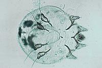 Sarcoptes scabiei, w.m. of adult specimen *