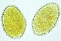 Lilium, mature pollen grains w.m.