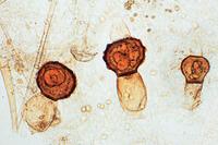 Mucor mucedo, formation of zygospores w.m.