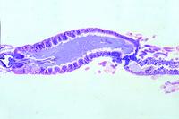 Chyle and middle intestine with Malpighian tubules, l.s. of Periplaneta (Blatta)