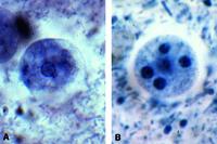 Entamoeba coli, nonpathogenic, smear from feces