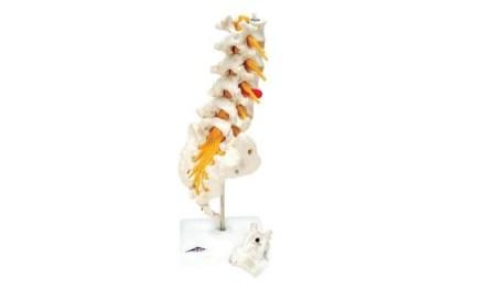 Lumbar Spinal Column with Dorso-Lateral Prolapsed Intervertebral Disc