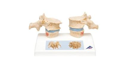 Osteoporosis Model