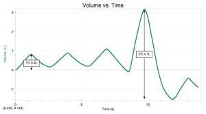 Spirometer Volume vs. time Sample Data Logger Pro