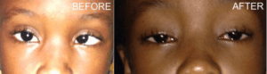 An eight- year old patient, before and after her surgery by the visiting team of Trinidadian doctors at the GPHC.
