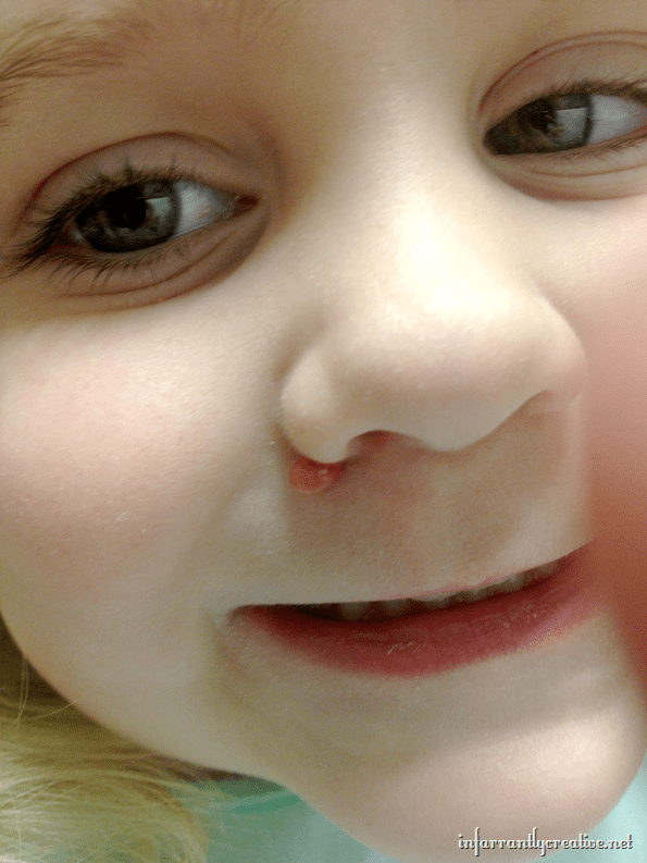 My Daughter's Health Story Part 3