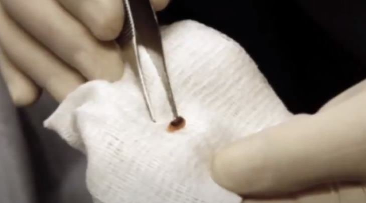 Surgeon Roger Leir And His Study Of Mysterious Alien Implants