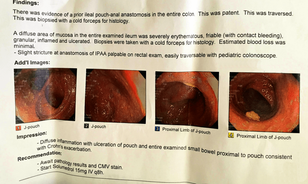 report from my endoscopy with 4 pictures of my jpouch and small bowel.