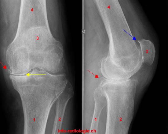 scleroza plăcii subcondrale a tratamentului articulației genunchiului)