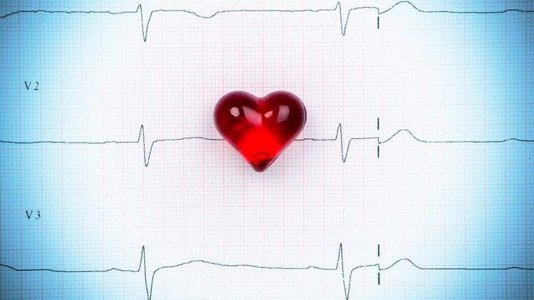 Resultado de imagen para ataques cardiacos en el tenis