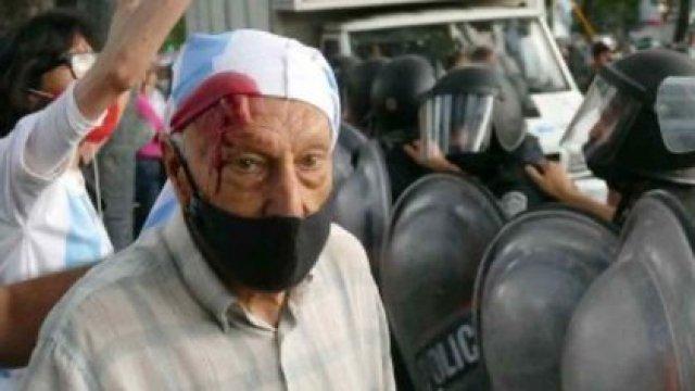 Una de las personas agredidas por gremialistas el sábado en Olivos (@Ricardo23197258)