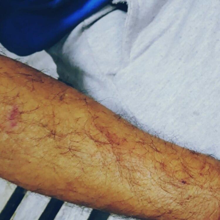 El brazo de Rojas presentaba rasguños