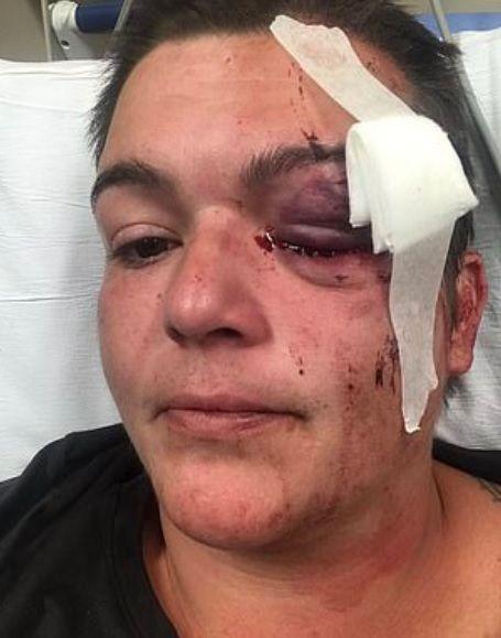 Periodista herida en el ojo izquierdo durante las protestas por el asesinato de George Floyd