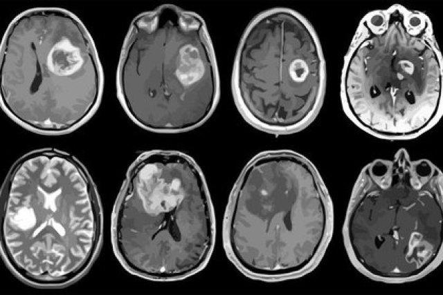 10/02/2021 Glioblastoma, tumor cerebral agresivo mapeado en detalle genético y molecular. SALUD ALBERT H. KIM