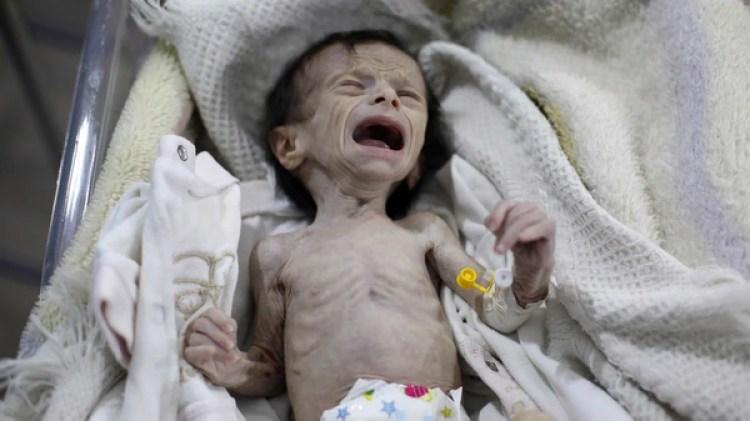 Su madre estaba demasiado desnutrida como para amamantarla y comprar leche es casi imposible en esta zona de guerra (AFP)