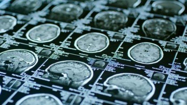 El cerebro es el órgano más importante que poseemos, por lo que es clave que goce de buena salud (Shutterstock)