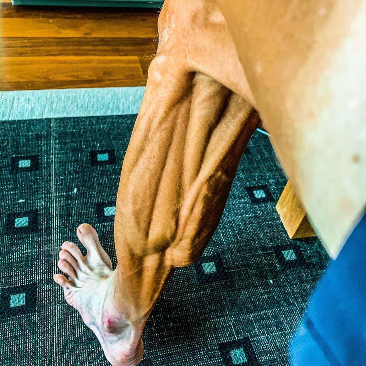 Así se ve la pierna de Brajkovic luego de competir
