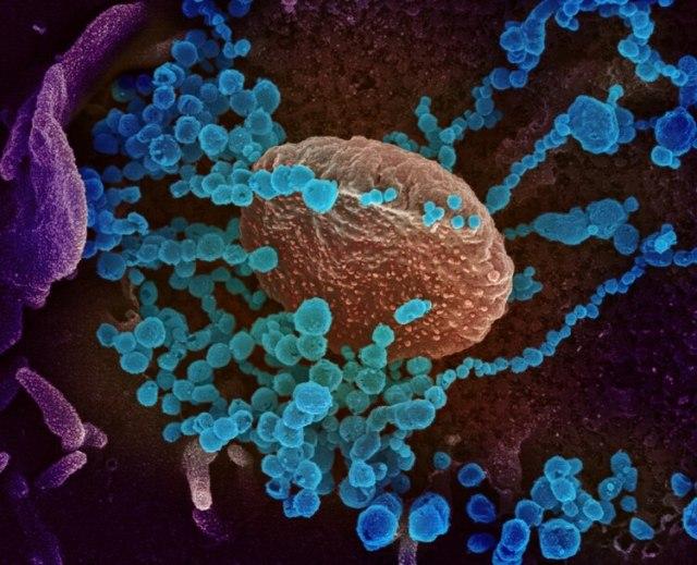 Aquí se ve una imagen microscópica aumentada del SARS-CoV-2: una de las cuestiones que provoca el COVID-19 es que la inflamación aumenta la coagulación de la sangre. Y en mayor medida que en otras epidemias. Aparte de todo lo que provoca en el organismo, el coronavirus tendría un efecto mayor de formar coágulos. (REUTERS)