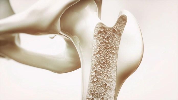 La adolescencia es la etapa ideal para prevenir la osteoporosis (Shutterstock)