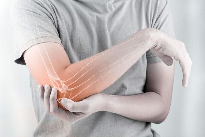 Lo más concreto de la AR es que definitivamente impacta en muchos aspectos de la vida cotidiana de los pacientes, incluso puede causar una inflamación dolorosa que puede erosionar los huesos y provocar la deformación de las articulaciones, hasta llevar al paciente a la discapacidad (Shutterstock)