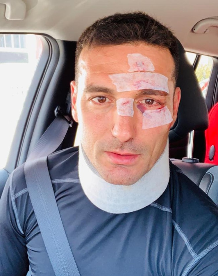 Lionel Scaloni subió una foto tras recibir el alta médica