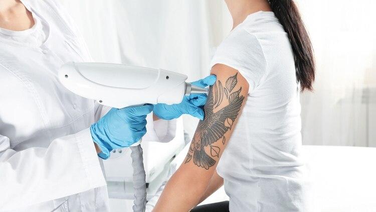 Los nuevos tratamientos láser permiten tratar en forma efectiva desde lesiones pigmentarias y malformaciones vasculares hasta incontinencia urinaria (Shutterstock)