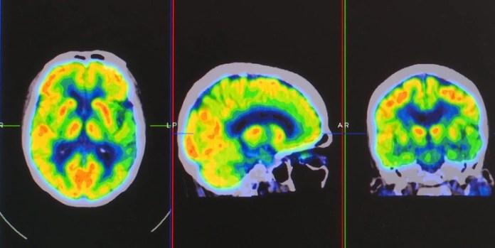 Imágenes de los cerebros de los perros, tomadas a través de una resonancia magnética (Shutterstock)