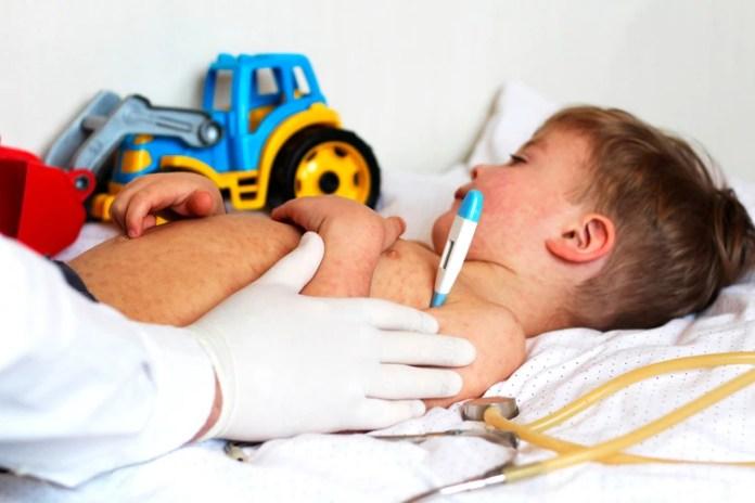 El virus del sarampión infecta las células inmunes, causando supresión inmune aguda (Shutterstock)