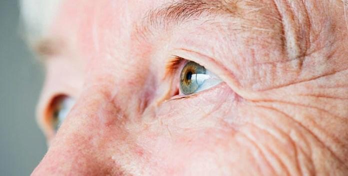 """La cirugía se realiza con la técnica de facoemulsificación, con un implante de lente intraocular que reemplaza al cristalino opacificado. El doctor Bodino explicó que """"esto se realiza de manera ambulatoria, con anestesia local, y que a través de cirujanos entrenados el proceso anestésico se realiza con el procedimiento con instilación de un colirio anestésico. El procedimiento dura entre 15 a 20 minutos"""