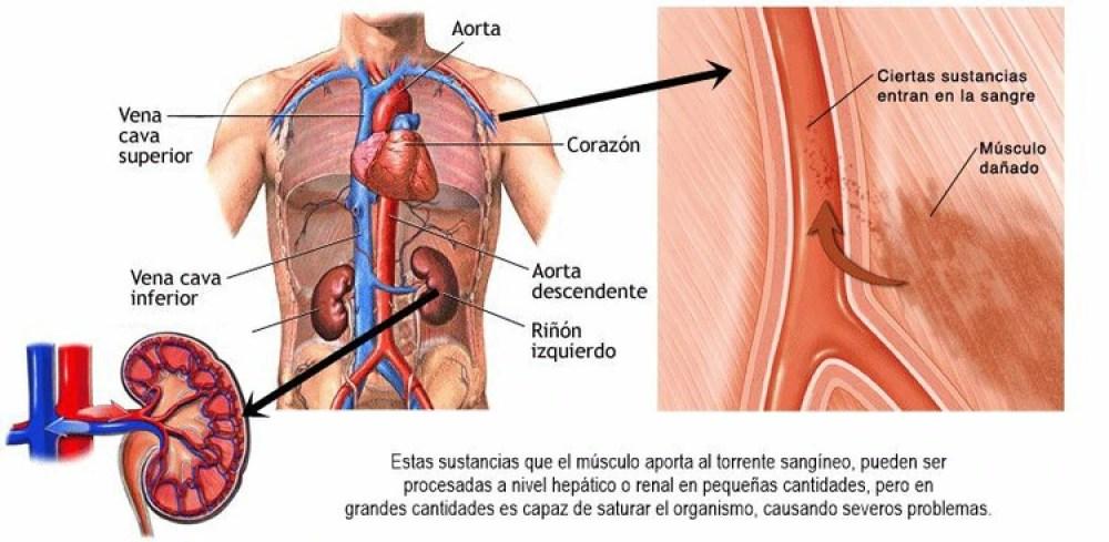 La ruptura de fibras musculares libera una proteína que puede dañar al riñón