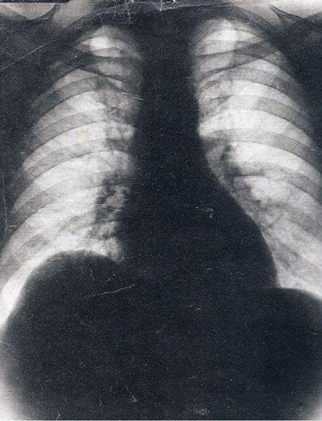 Juan domingo peron- falsa radiografia 1945