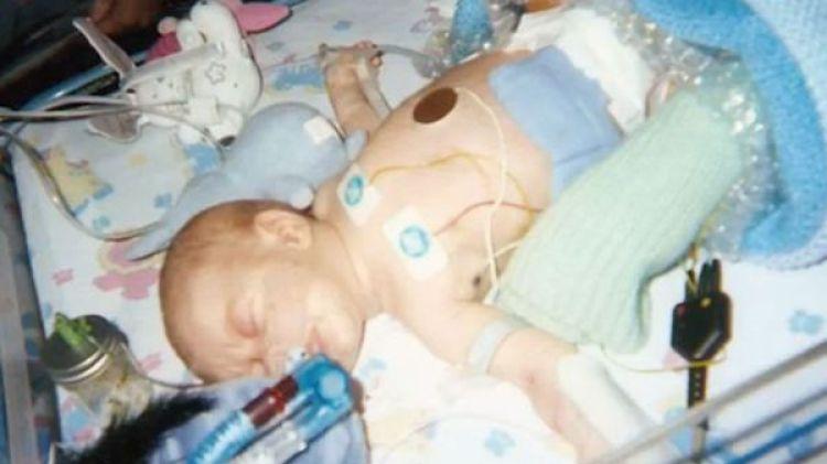 Los médicos le habían pronosticado sólo seis semanas de vida a un recién nacido Liam. Hace pocos días cumplió 18 años