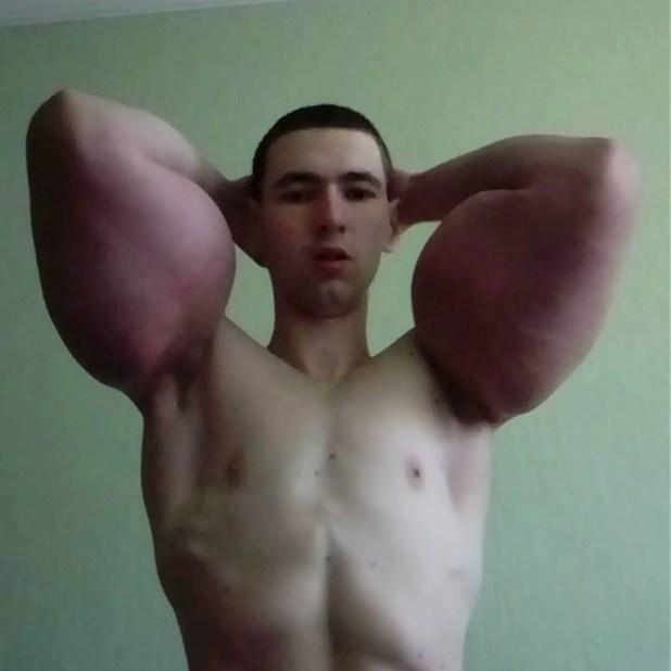 "El ""Popeye"" ruso se inyectó Shyntol en los brazos (@kirilltereshin96)"