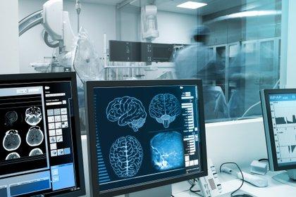 Estos cuadros se manifiestan antes de otros síntomas de Parkinson, como temblores y rigidez muscular (Foto: Shutterstock)