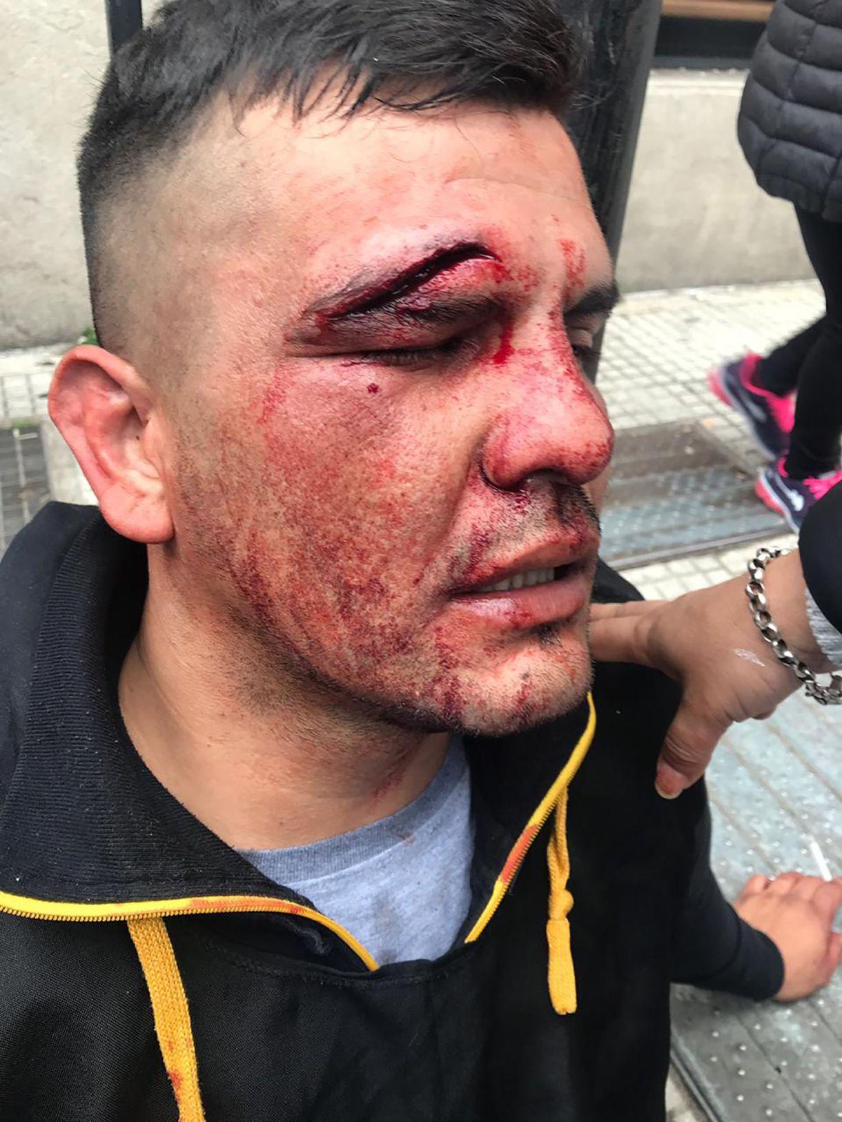 Uno de los manifestantes que debieron ser asistidos