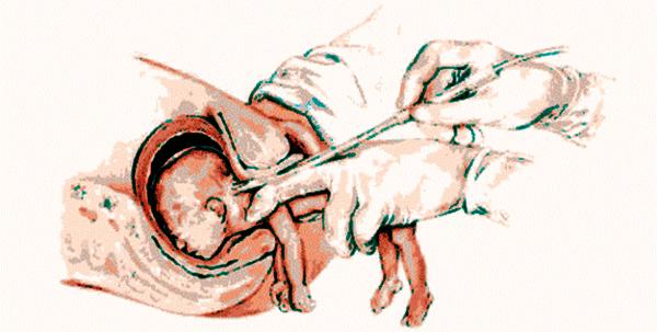 Resultado de imagen para imagenes abortistas