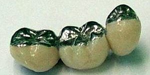 6 Ways Dental Composites are Used in Modern Dentistry