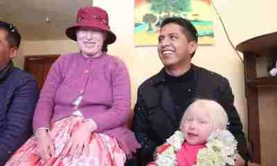 Albinismo en Bolivia