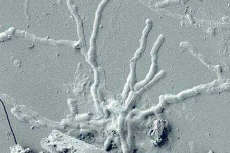 Eruzione del Vesuvio del 79 d.c.: Neuroni nel cervello vetrificato di una vittima