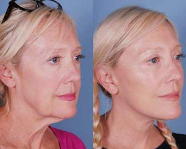 A woman showing her face after undergoing a mini face lift