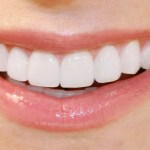 12 Home Remedy Ways You Can Whiten Your Teeth Easily