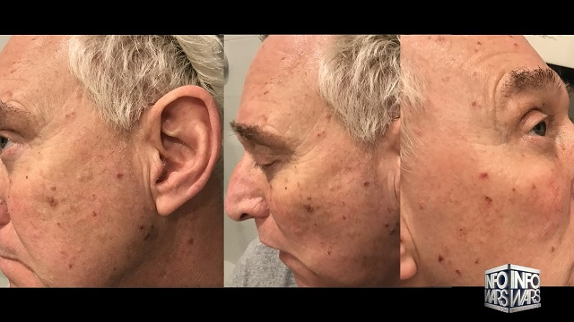 Report Roger Stone Poisoned by Polonium210