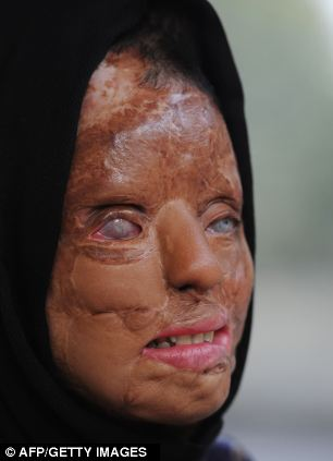 SCARRED: SONALI HAS UNDERGONE 22 SURGERIES SINCE THE 2003 ATTACK WHICH SAW HER LOSE MOST OF HER FACIAL FEATURES. SHE IS PARTIALLY BLIND AND DEAF AS A RESULT OF HER INJURIES.