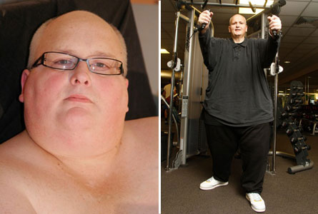 Photo Worlds Fattest Man Loses 644 Pounds INFORMATION