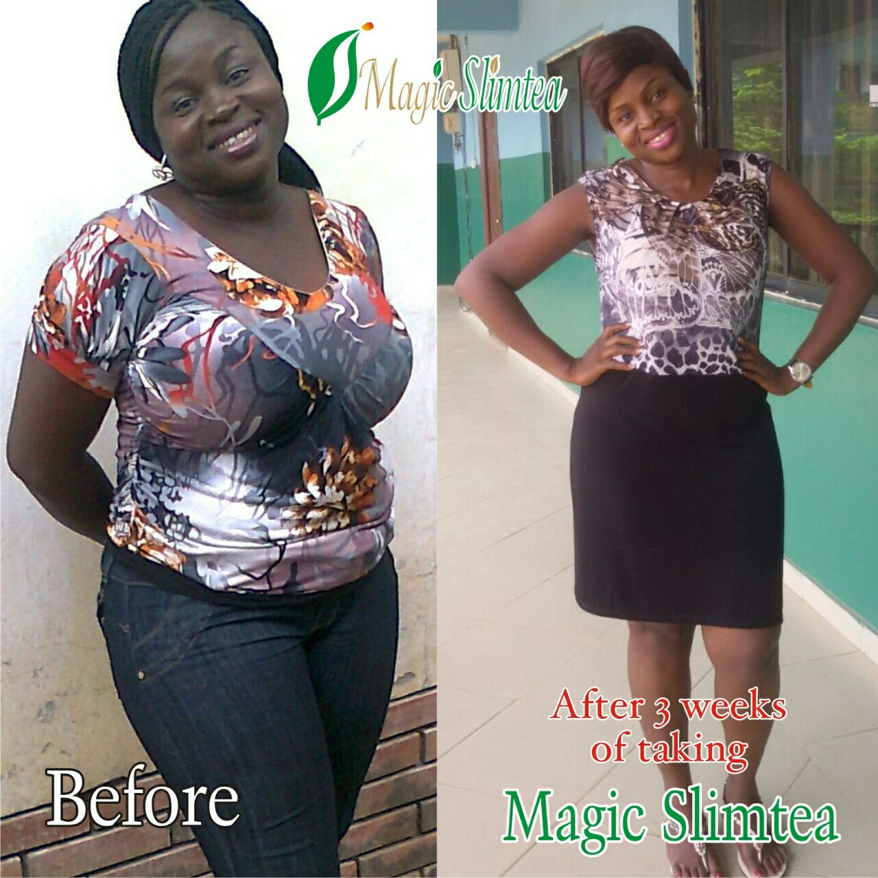 Lose 7 10kg In Weight Weekly And Get Your Fibroid