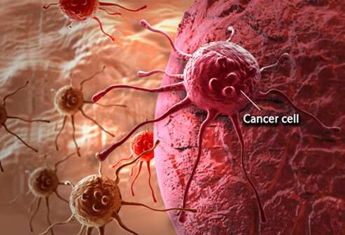 Vitamin C Targets And Kills Cancer, According To New Researches