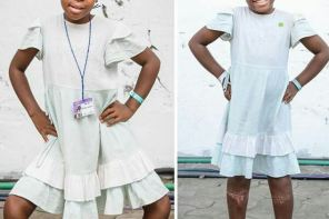 11-Year-Old Girl, Justine Is All Smiles As She Shows Off Her New Legs Five Months After A Life Changing Surgery
