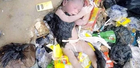 [Graphic Photo]: Dead Newborn Baby Found Dumped At Refuse Site In Bayelsa