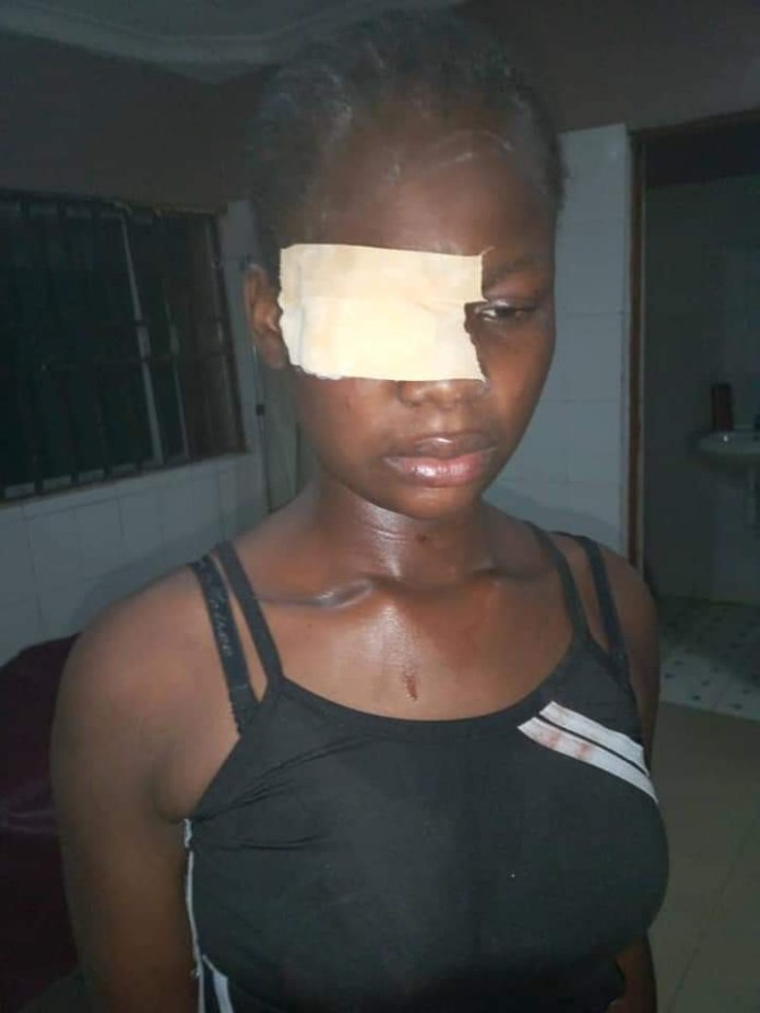 17-year-old almost blinded for refusing sexual advances from a man
