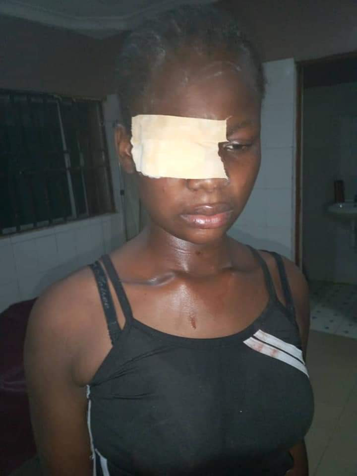 5ca615c748901 - Read the sad story of a 17-year-old almost blinded for refusing sexual advances from a man